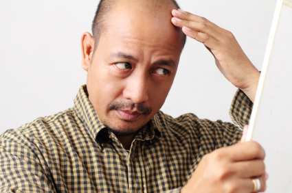 Balding Heart Diesease Risks