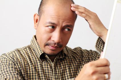 Balding Heart Diesease Risks