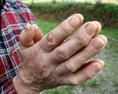 Taking this herb can help with osteoarthritis.
