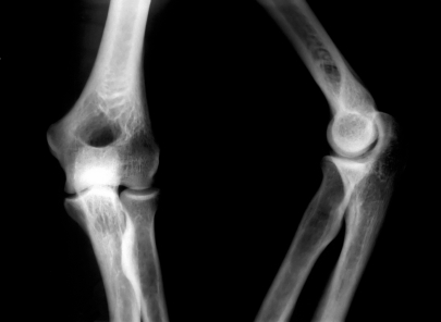 This surprising vitamin keeps bones strong and dense. Without it your risk for fractures goes up 70 percent.