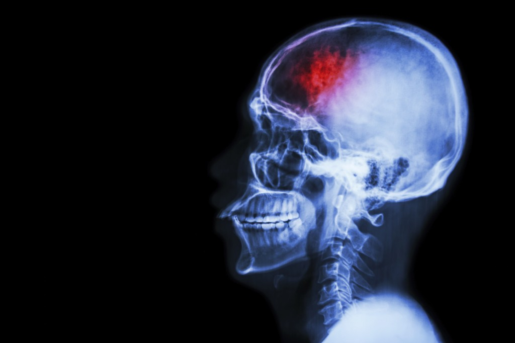 Research suggests stroke risk in the U.S. is dropping… But details missing from the mainstream headlines that could help save your health—even your life.