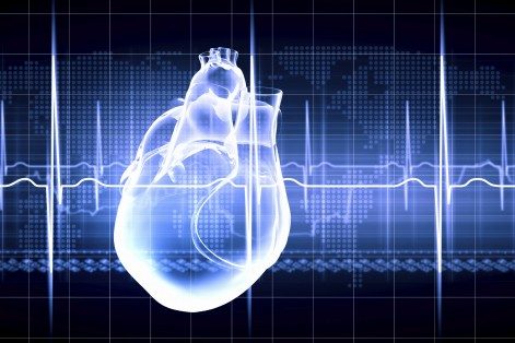 Heart attacks are scary enough… Now research shows people experiencing this condition after one could be making you six times more likely to die within six months of one.