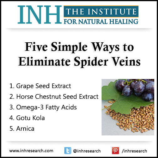 They aren't just embarrassing… Spider veins could be the first sign of a bigger, more dangerous problem. Here are five easy ways to get rid of them.