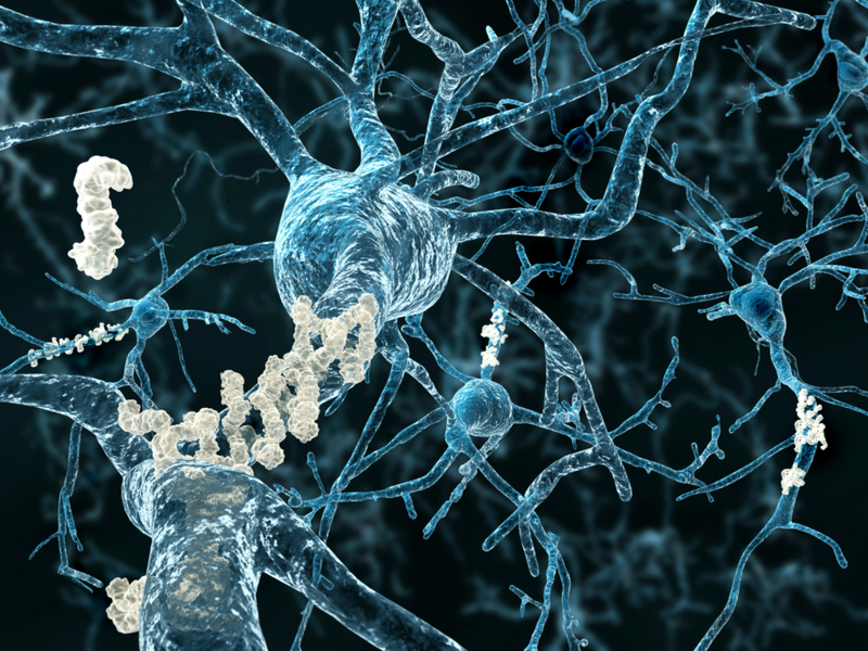 Researchers at Rowan University say they've devised the first 100% accurate test for Alzheimer's disease.