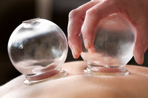 Michael Phelps is using cupping therapy during Olympic competition. If you suffer from back pain, the ancient practice may provide natural relief.