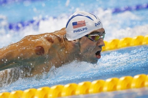 Michael Phelps sports cupping marks on his shoulders