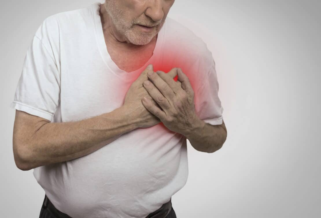 Photo of heart attack.