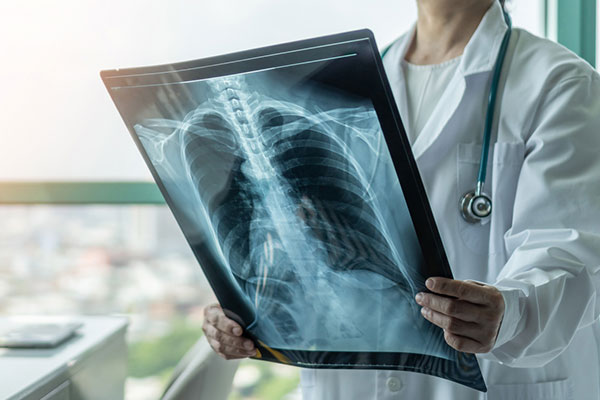 Photo of Doctor holding x-ray.